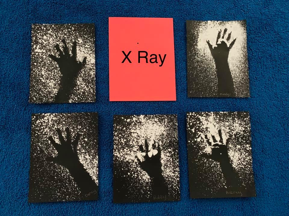 X-Ray Crafts for Preschoolers